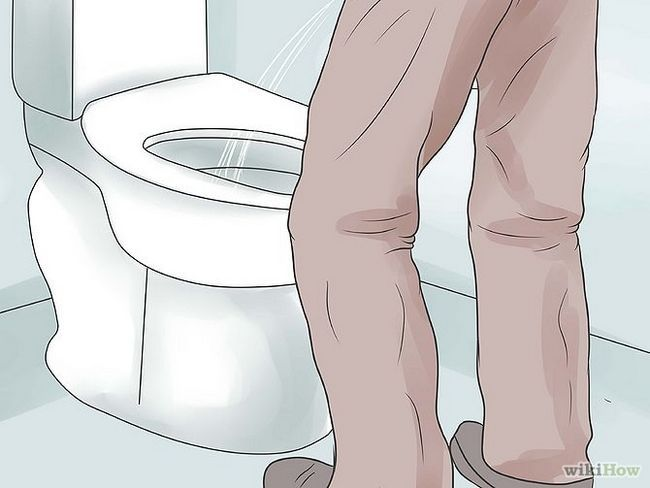 Зображення з назвою Know if You Have Prostate Cancer Step 1